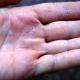 Трескается кожа на руках? Что делать?