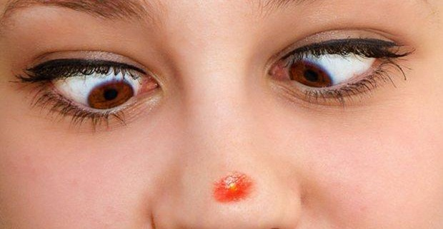 Прыщи на носу – проблема мелкая, неприятностей - масса