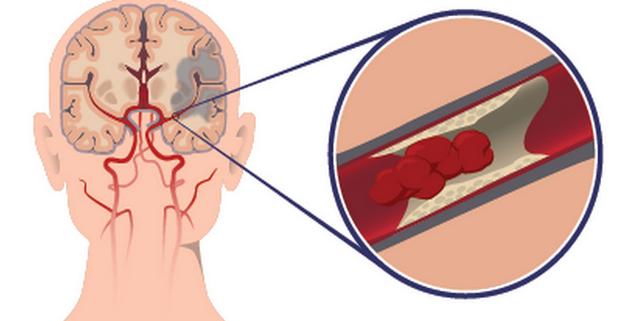 Разработано новое терапевтическое вмешательство для ишемического повреждения головного мозга