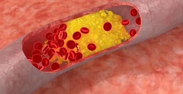 Атеросклероз сосудов головного мозга: причины возникновения