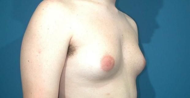 Гинекомастия: причины, симптомы, лечение
