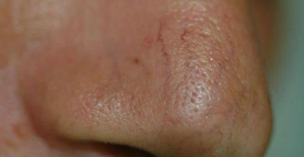 Сосудистые звездочки на носу – нездоровое украшение!
