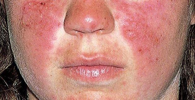 Системная красная волчанка: причины, симптомы, лечение