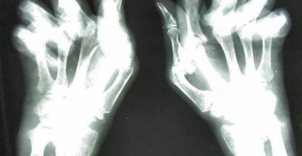 Деформирующий артроз или как жить с остеоартрозом