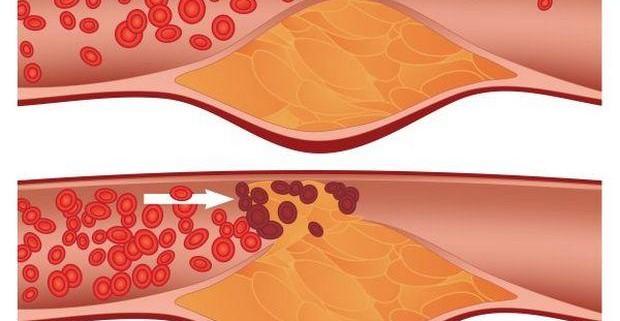 Атеросклероз – угроза для жизни!