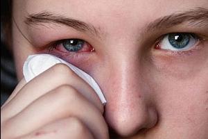 Лечение аллергического конъюнктивита