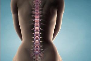 Сдавление спинного мозга