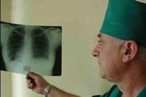 Симптомы и лечение туберкулёза почек в Москве