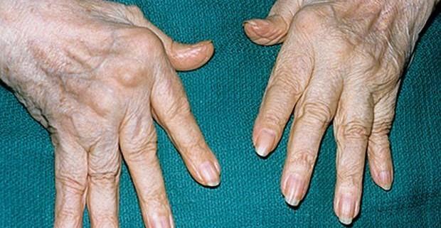 Ревматоидный артрит – это приговор?
