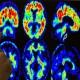 Новое открытие может привести к ранней диагностике трудностей с чтением
