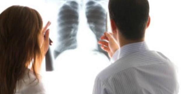 Рак легких может затаиться на 20 лет