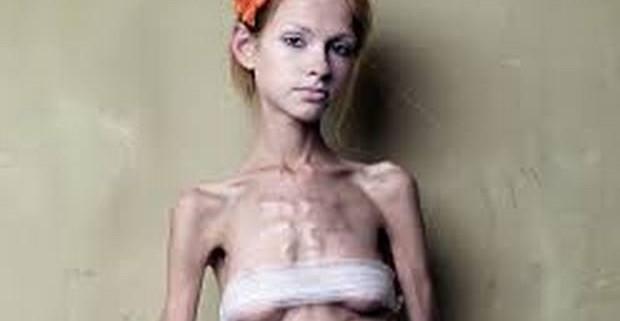 Анорексия: отсутствие аппетита как признак психического расстройства