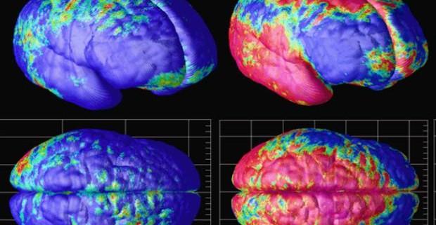 Томография показала, что гены влияют на старение тканей мозга
