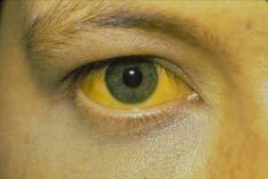 Профилактика, симптомы и лечение рака печени