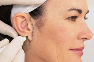 Коррекция ушей