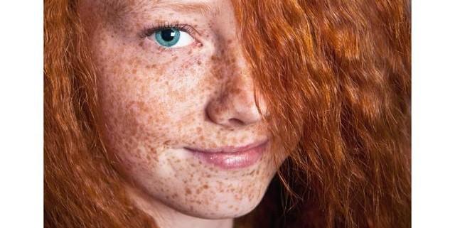 Мелазма и хлоазма – повышенная пигментация кожи
