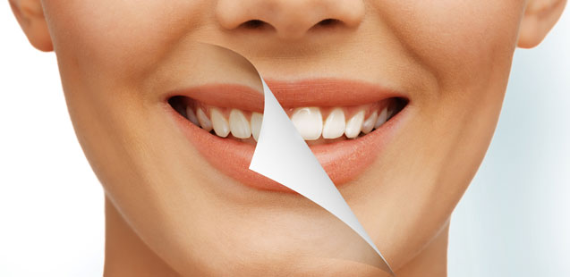 Отбеливание зубов без ошибок