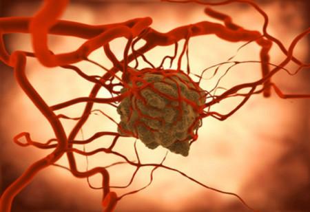 Скоро начнутся испытания нового препарата от рака