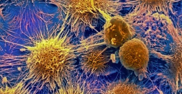 Генетики «научили» лимфоциты распознавать раковые клетки