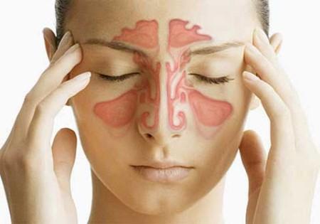 Фронтит – симптомы и лечение