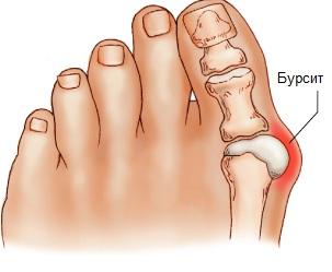Бурсит – причины и лечение