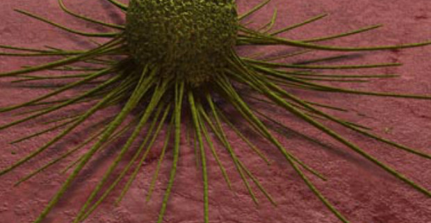 cancer-cell (1)