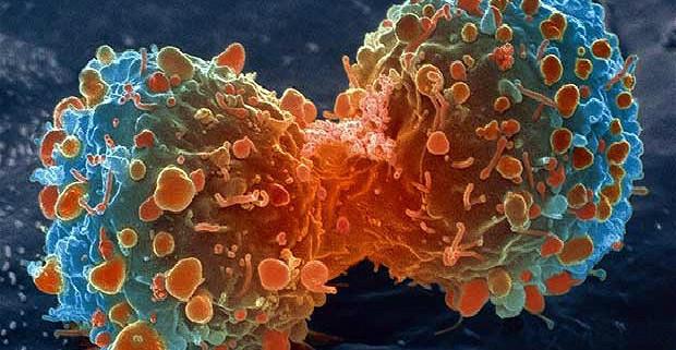 cancer-lambert