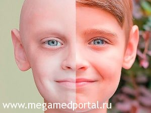 Рак у ребёнка