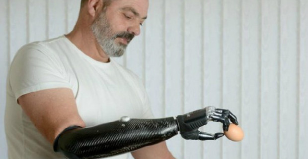 robotic-bionic-prosthetic-arm