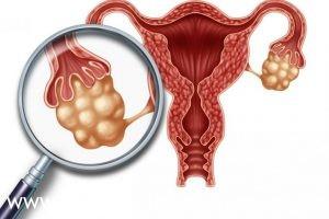 Гиперстимуляция яичников
