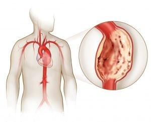 Аневрзима сердца