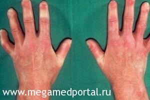 Системная склеродермия на руках