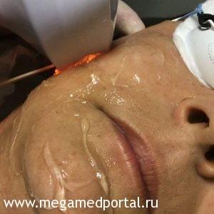 Операция на коже