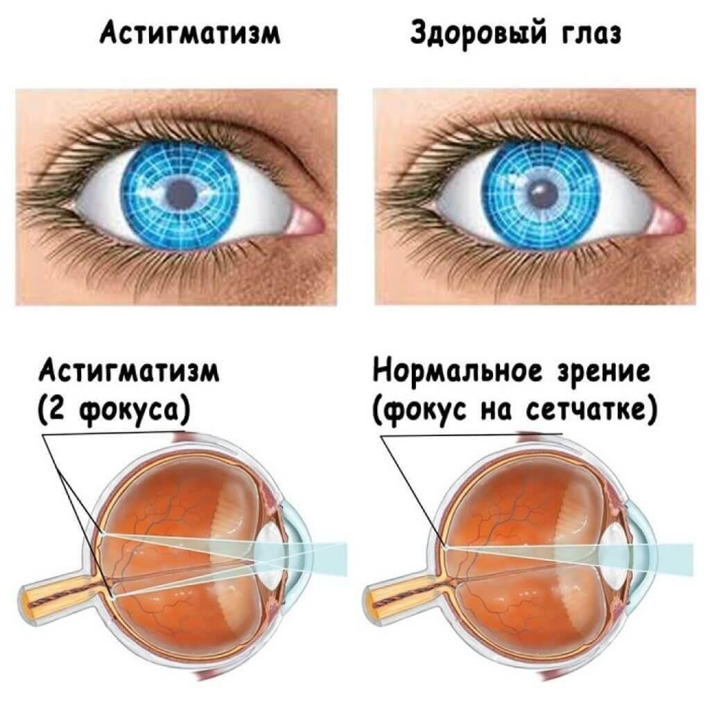 астигматизм симптомы