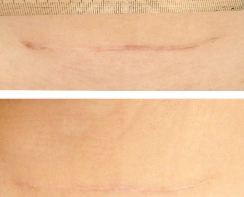 лечение рубцов коллагеновым комплексом