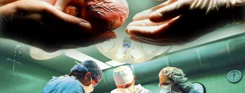 трансплантация тканей плода