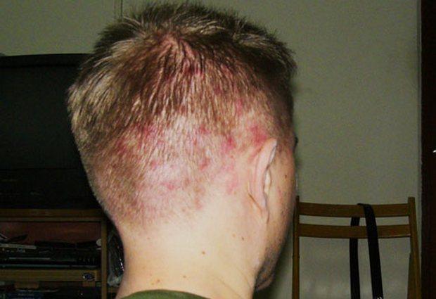 Болячки на голове волосы не растут