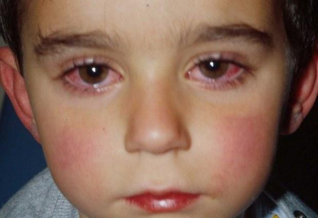 Хламидиоз у детей глаза