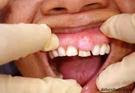 Что такое стоматологический абсцесс?