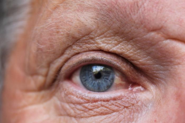 Как вылечить глаз от слепоты thumbnail