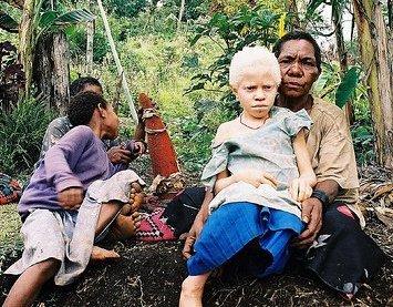 Альбинизм в природе