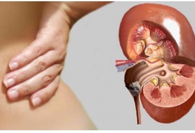 Мочекаменная болезнь: симптомы, причины, лечение