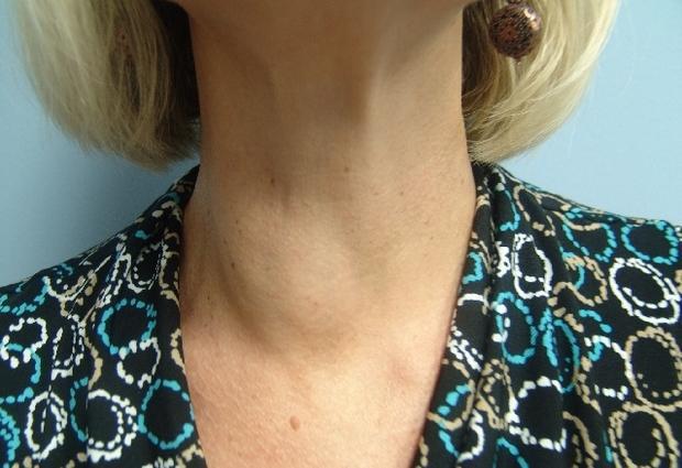 Узлы в щитовидной железе: причины образования, симптомы, осложнения