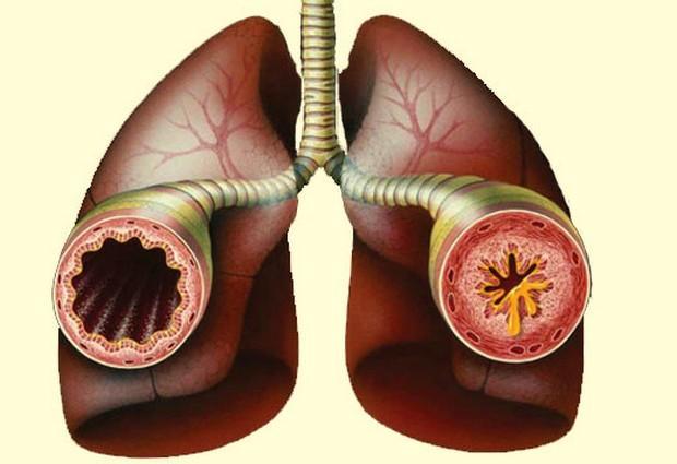 Бронхиальная астма: методы народного лечения