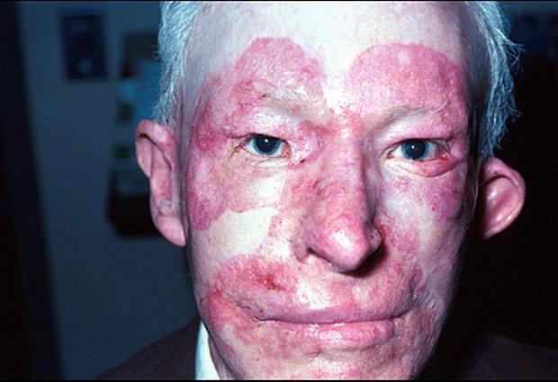 Красная волчанка: симптомы, последствия, лечение
