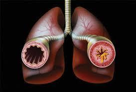 Причины астматических аллергических и неаллергических приступов