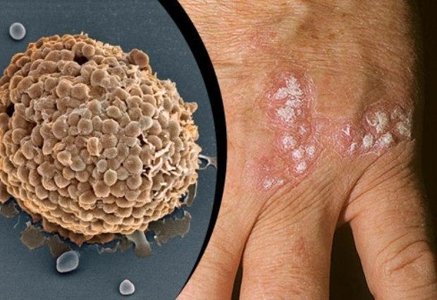 Признаки псориаза: как распознать болезнь?