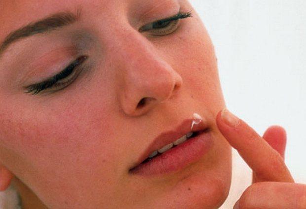 Герпес на губах: не страшен, но неприятен