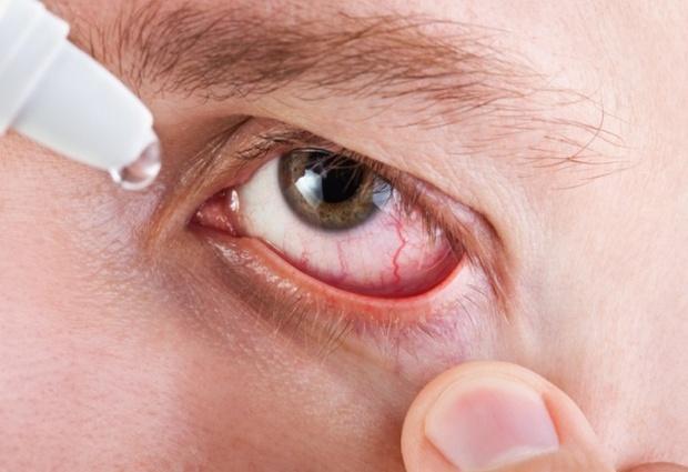 Хламидиоз глаз: причины, симптомы, пути заражения