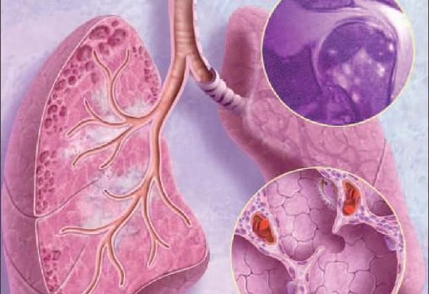 Саркоидоз легких: причины, симптомы, лечение